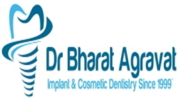 Seminar on Dental Implants For Missing Teeth And Loose ILL Fitting Denture In Ahmedabad Gujarat India