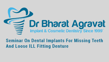Pubic Seminar On Dental Implants For Missing Teeth And Loose ILL Fitting Denture In Ahmedabad Gujarat India